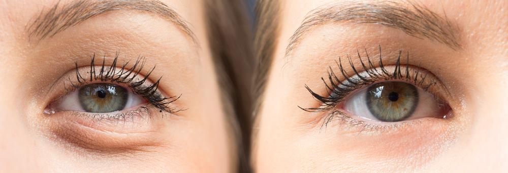 eye bags close up